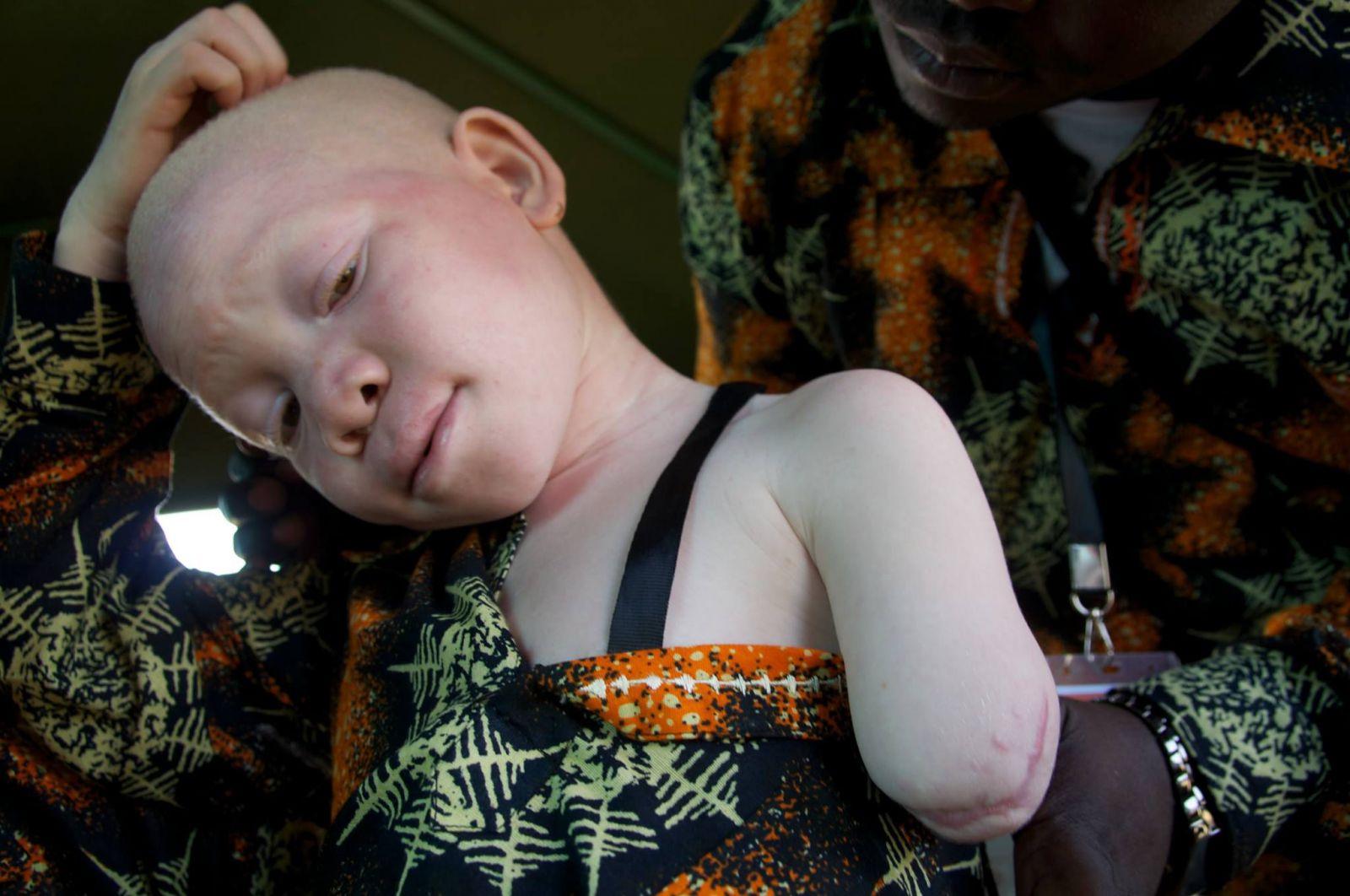 Černošští albíni